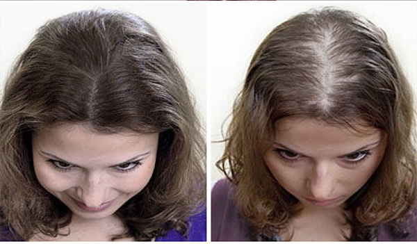 ملء فراغات الشعر وزيادة معدل النمو الى اضعاف