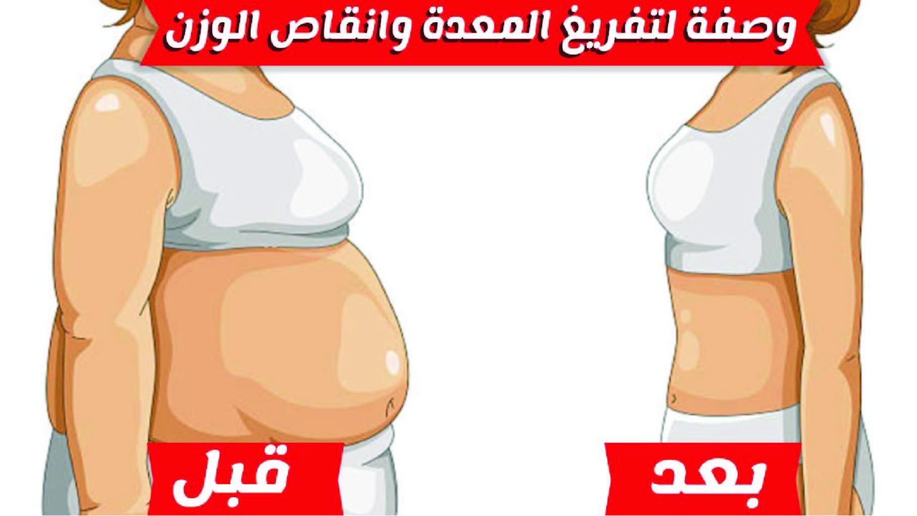 لو وزنك زياده بنقدملك بديل تكميم المعده فروسكلين للتخلص من الكرش